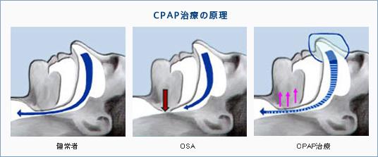 CPAP治療の原理