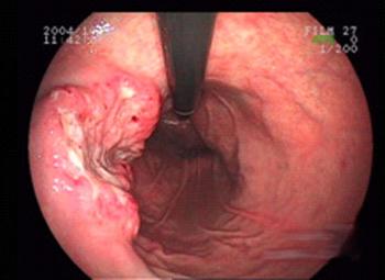 胃ガン04