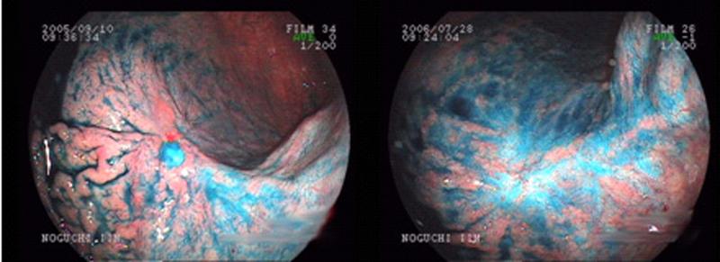 胃、十二指腸潰瘍03