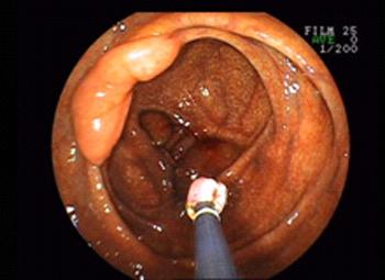 大腸ポリープ切除術05