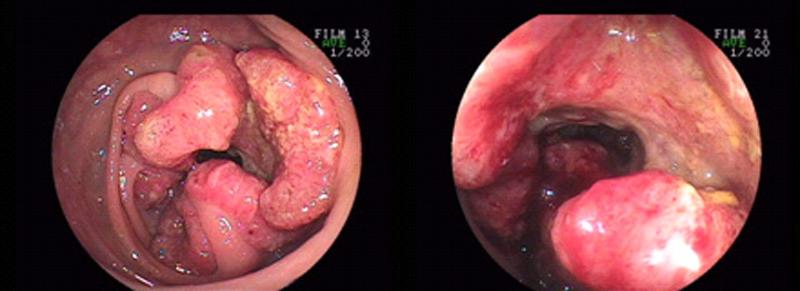 大腸ガン02